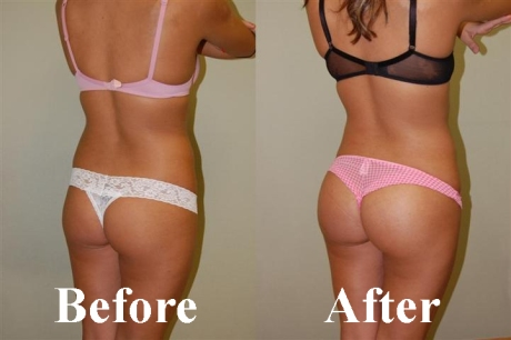big-butt-before-after